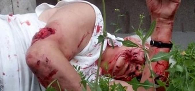 O bătrână a fost ucisă pe drumul spre casă de un câine în județul Argeș