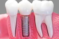 Implantul dentar, soluția modernă de a înlocui un dinte lipsă