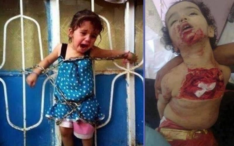 Cruzime maximă în Siria. Au legat-o în lanțuri iar mai apoi i-au smuls inima din piept