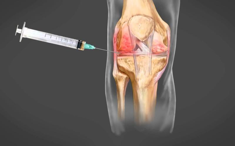 """Terapia """"Vampir"""" ajută la refacerea rapidă a oaselor şi a tendoanelor"""