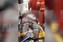 Incredibil ce a putut face un bărbat în ambulanţă. Medicii au rămas şocaţi