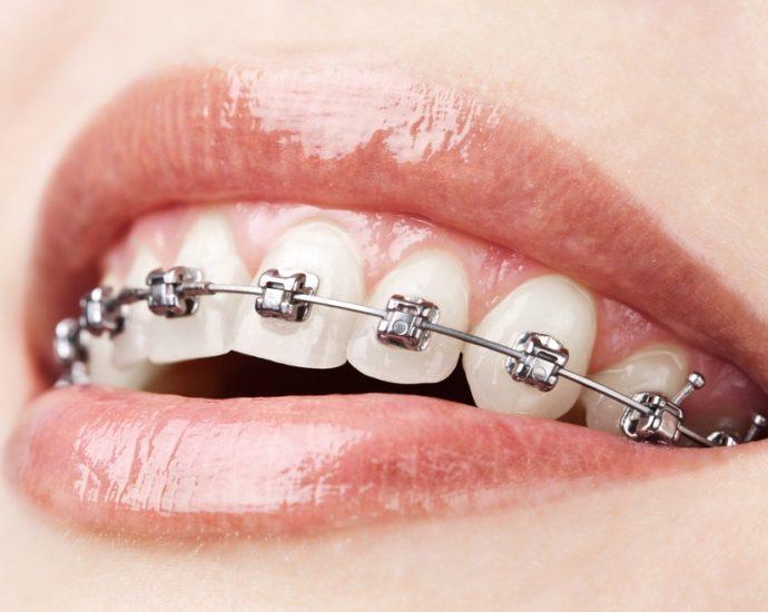 Aparatul dentar fix metalic