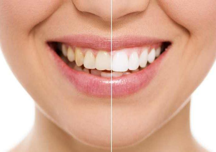 cat costa albirea dentara profesionala